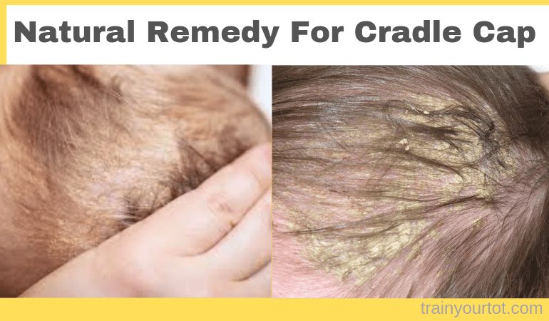 Natural Remedy for Cradle Cap